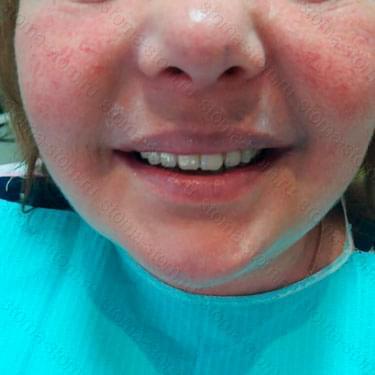 Лечение и протезирование зубов. Пациент из Мазановского района