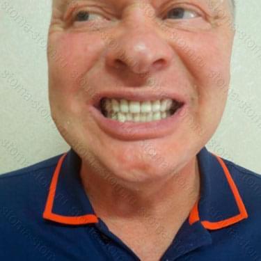 Проезирование всех зубов. Пациент и Камчатки