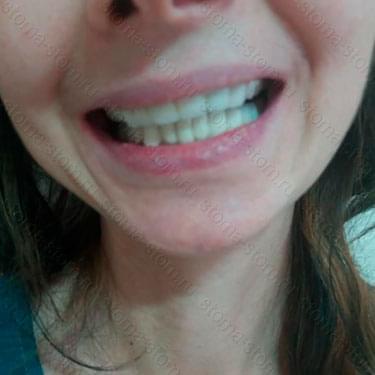Протезирование и лечение зубов. Пациент из Магадана