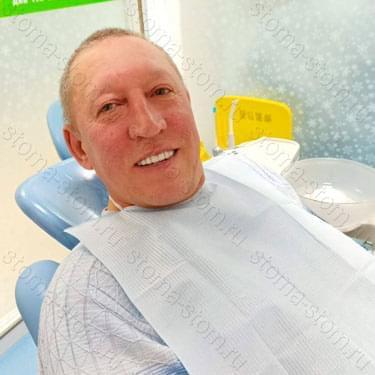 Пациент с Якутии. Поставили 24 коронки из кобальта-хромового сплава. У пациента был парадантоз.