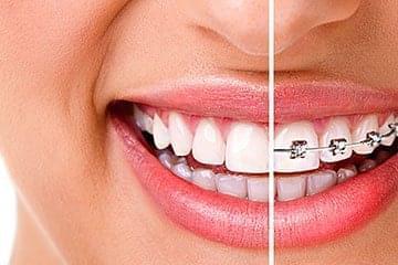 Ортодонтия в Китае